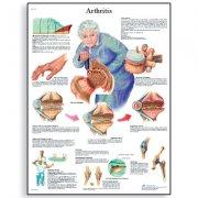 Εκπαιδευτική αφίσα αρθρίτιδας 3B Scientific