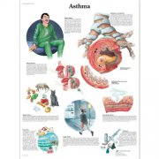 Εκπαιδευτική αφίσα άσθματος 3B Scientific