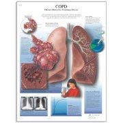 Εκπαιδευτική αφίσα Χ.Α.Π 3B Scientific