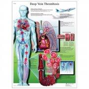Εκπαιδευτική αφίσα φλεβικών θρομβώσεων 3B Scientific
