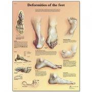 Εκπαιδευτική αφίσα παραμορφώσεων των ποδιών 3B Scientific