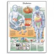 Εκπαιδευτική αφίσα σακχαρώδη διαβήτη 3B Scientific