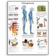 Εκπαιδευτική αφίσα οστεοπόρωσης 3B Scientific