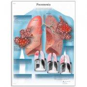 Εκπαιδευτική αφίσα πνευμονίας 3B Scientific