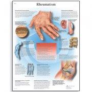 Εκπαιδευτική αφίσα ρευματισμών 3B Scientific