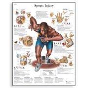 Εκπαιδευτική αφίσα αθλητικών τραυματισμών 3B Scientific