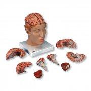 Πρόπλασμα ανθρώπινου εγκεφάλου 8 τμημάτων C25